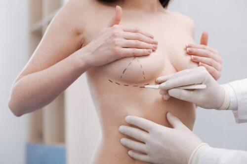 Phẫu thuật nâng ngực có đau không?